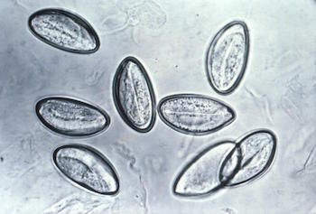 pinworm-eggs-wikipedia.jpeg